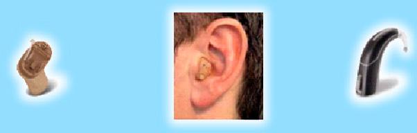 audifono intracanal